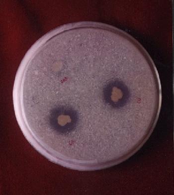 Bakteri Pelarut Fosfat