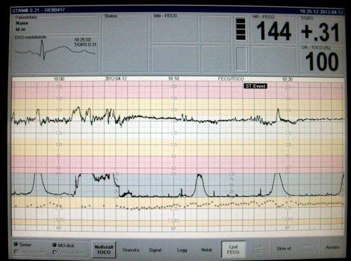 Monitor yang merekam kontraksi rahim